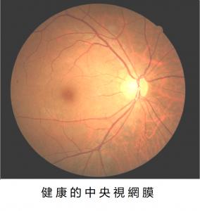 眼底健康檢查