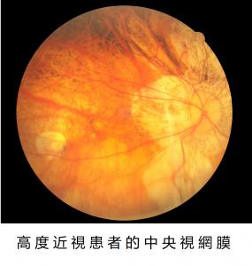 近視的矯正與預防