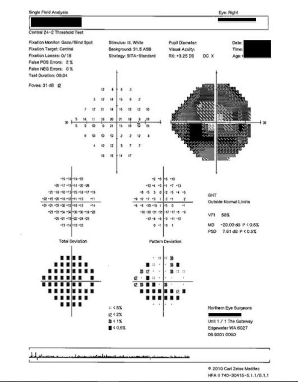visual field analyzer repory