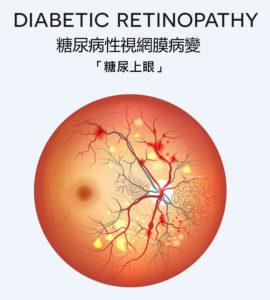 糖尿眼檢查