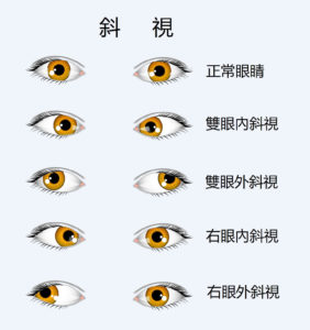 TYPES-OF-STRABISMUS