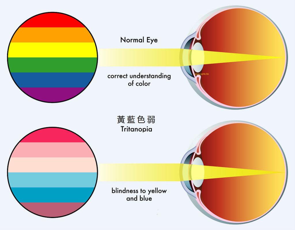 視覺功能問題